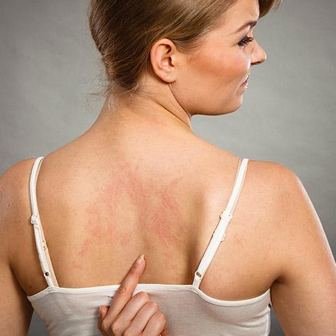 Frau zeigt auf ihre Nesseln am Rücken