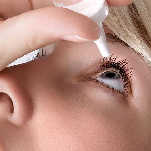 Frau verwendet Augentropfen gegen ihre Allergiesymptome